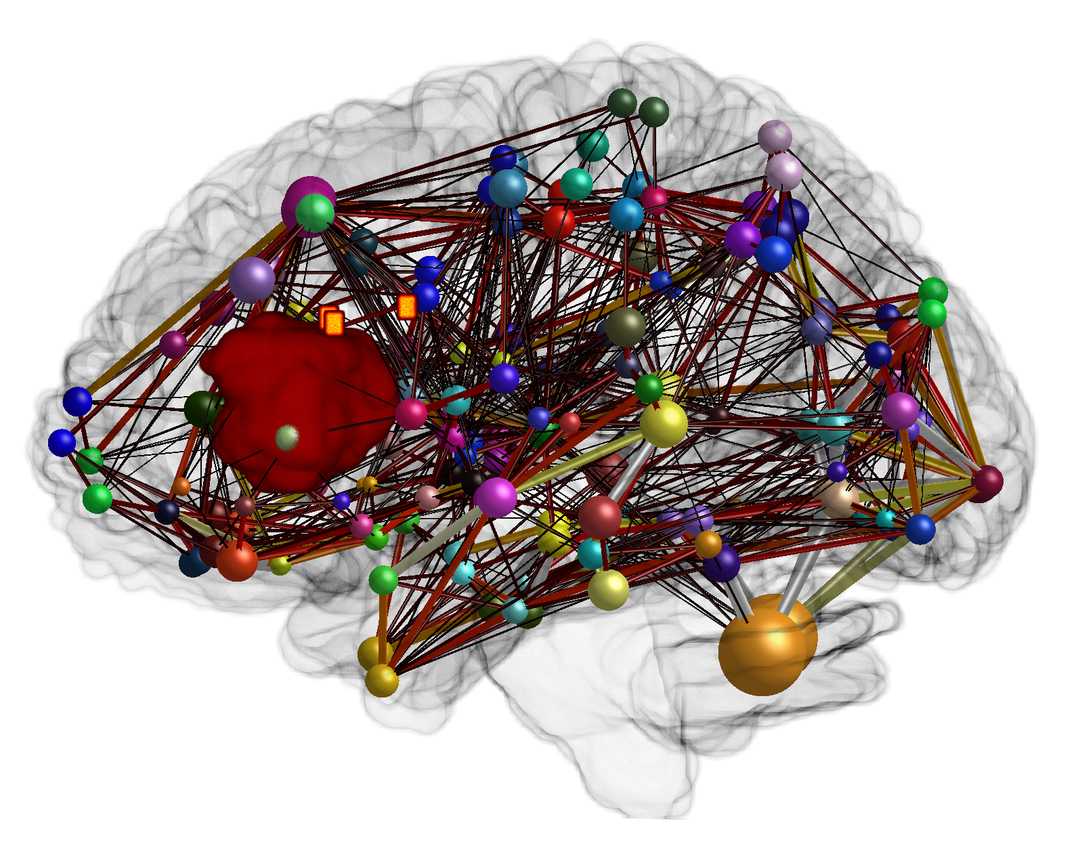 Connectome construction of a patient with a tumor in the speech-eloquent area of the brain.<br /> The connection strengths of the white matter are shown as edges with a heat map (dark = weak connection, light = strong connection). The cortical areas of the brain and their size are illustrated as nodes in the form of spheres. Additionally, three orange TMS points are shown (TMS = Transcranial Magnetic Stimulation). In this case, the patient